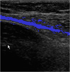Ultrasound Patient A - Deflated - Highlighted